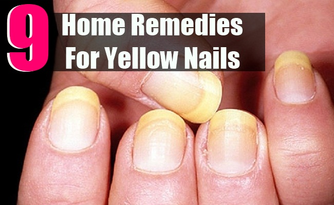 Top 9 Home Remedies For Yellow Nails