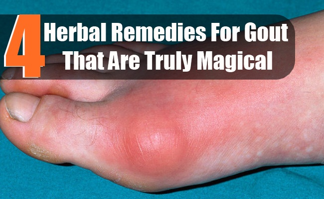 4 Herbal Remedies For Gout That Are Truly Magical