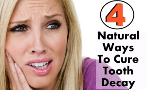 4 Natural Ways To Cure Tooth Decay