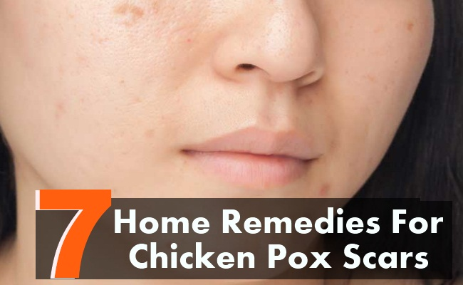 7 Best Home Remedies For Chicken Pox Scars