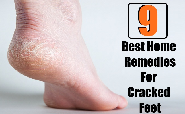 9 Best Home Remedies For Cracked Feet