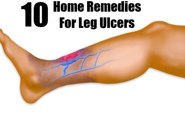Home Remedies For Leg Ulcers