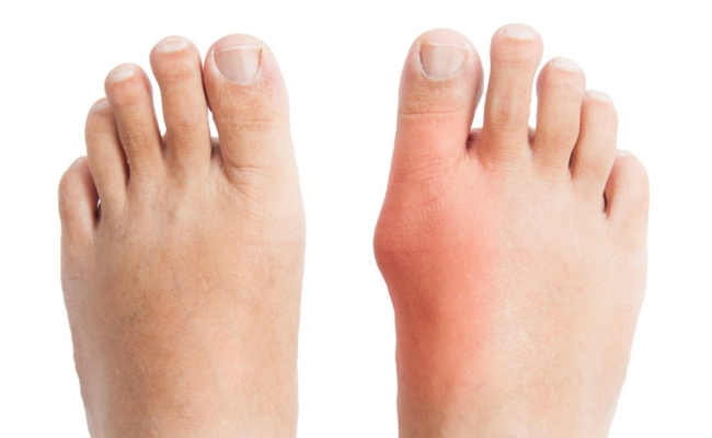 5 Easy Home Remedies For Bunions