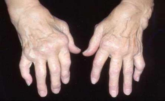 Protects Rheumatoid Arthritis
