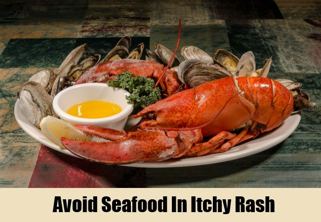 avoid-seafood-in-itchy-rash
