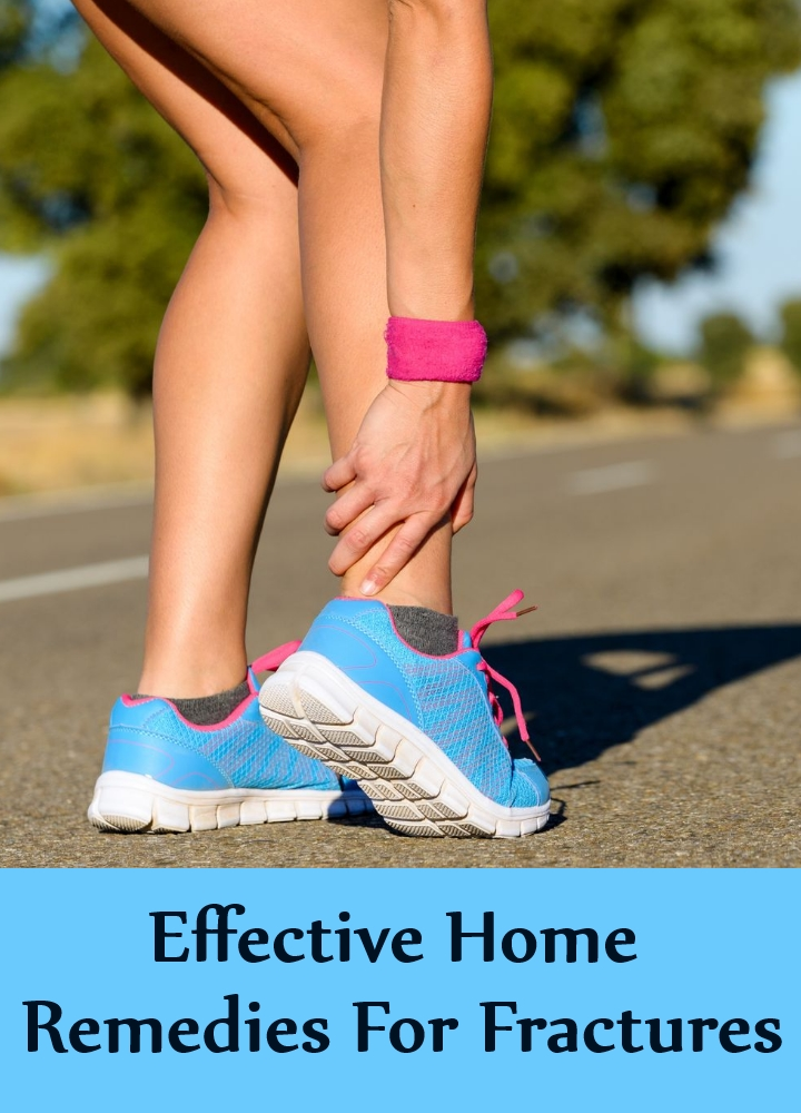 Effective Home Remedies For Fractures