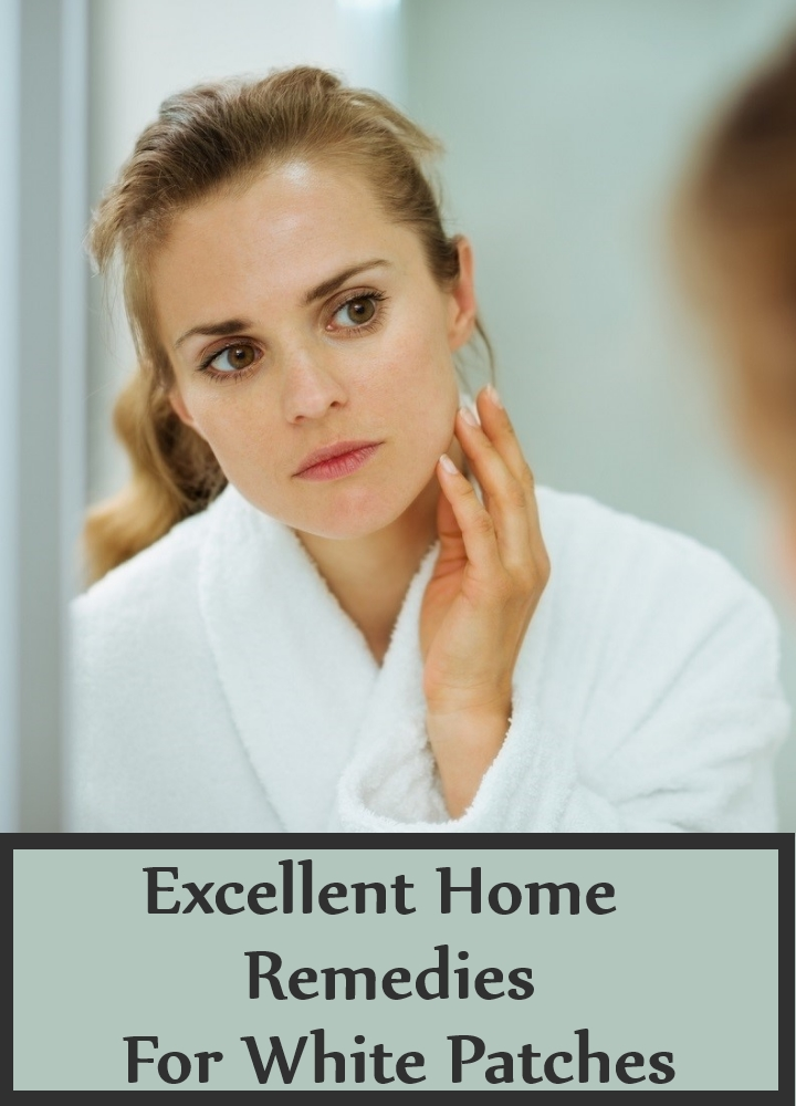 Excellent Home Remedies For White Patches