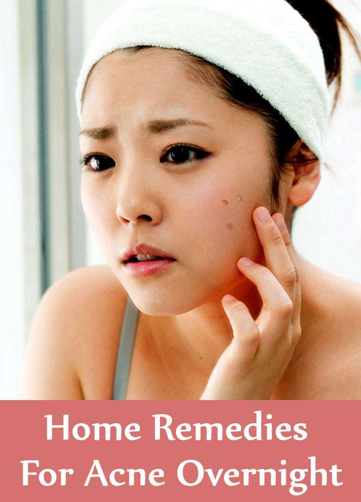 Home Remedies For Acne Overnight