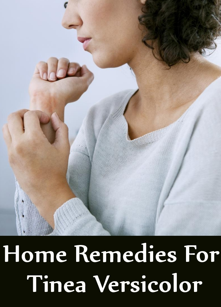 Home Remedies For Tinea Versicolor