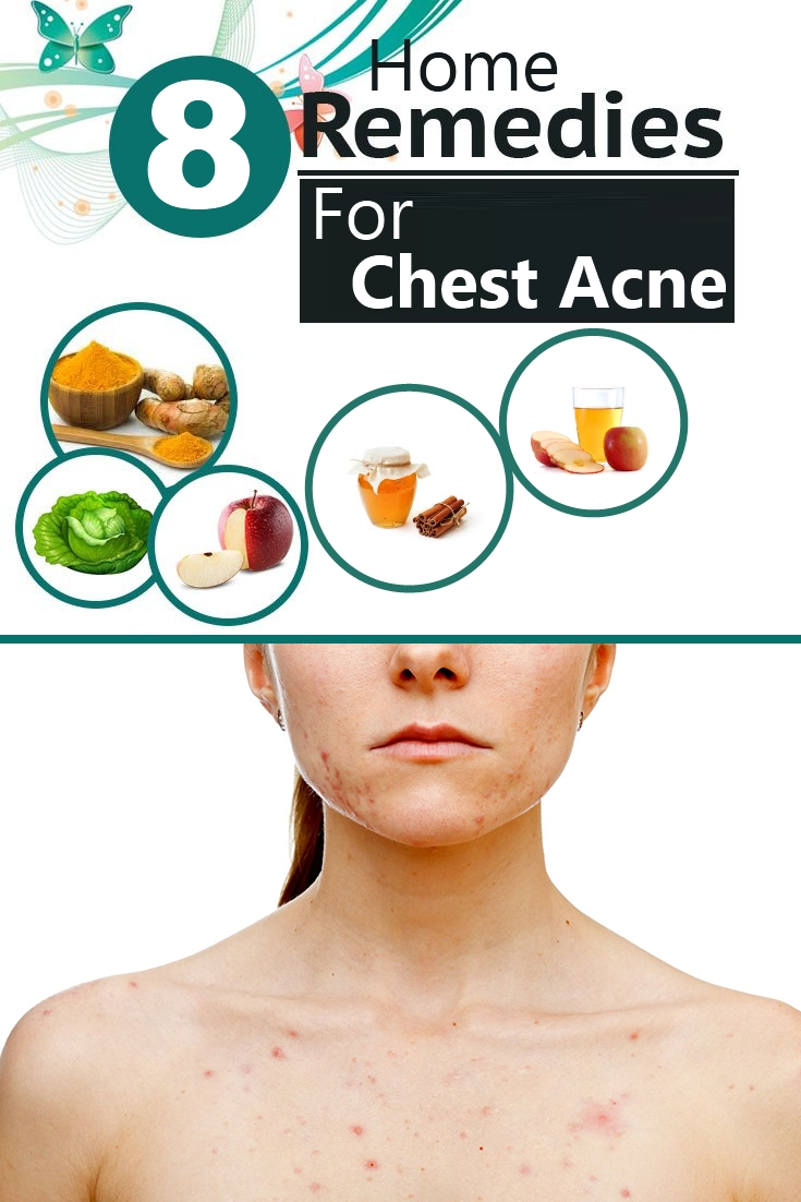 8-effective-home-remedies-for-chest-acne
