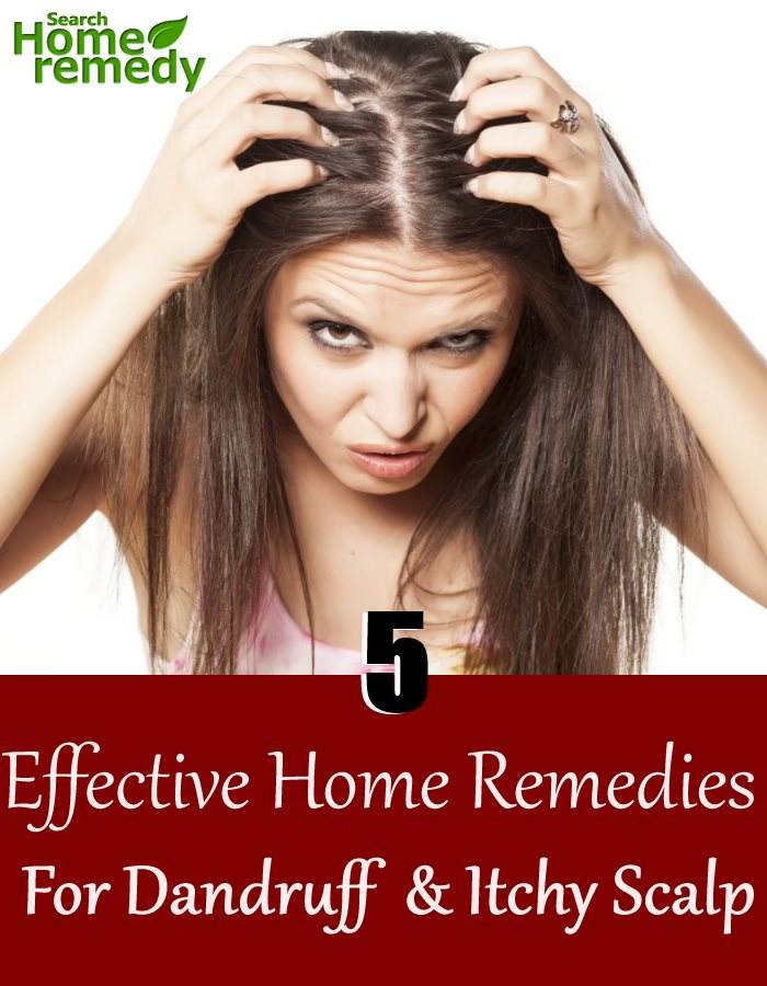 5 Effective Home Remedies For Dandruff And Itchy Scalp