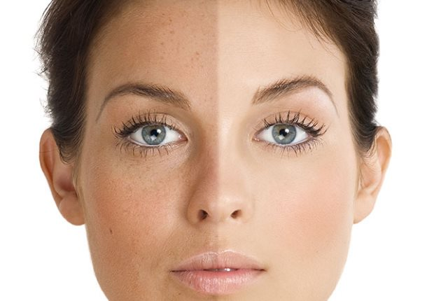 Witch Hazel For Puffy And Dark Eyes