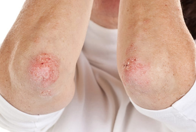 Use it Against Dermatitis Or Eczema