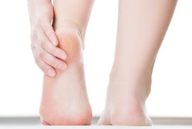 Use It For Softening Callused Feet