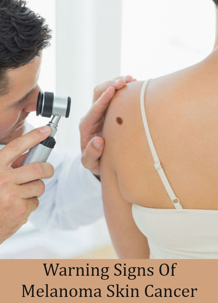 Warning Signs Of Melanoma Skin Cancer