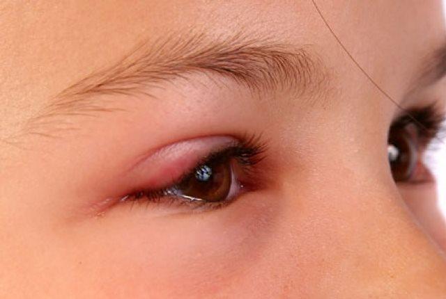 Protect Against Eye Diseases