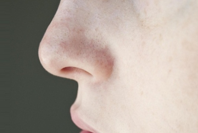 Clogged Skin Pores