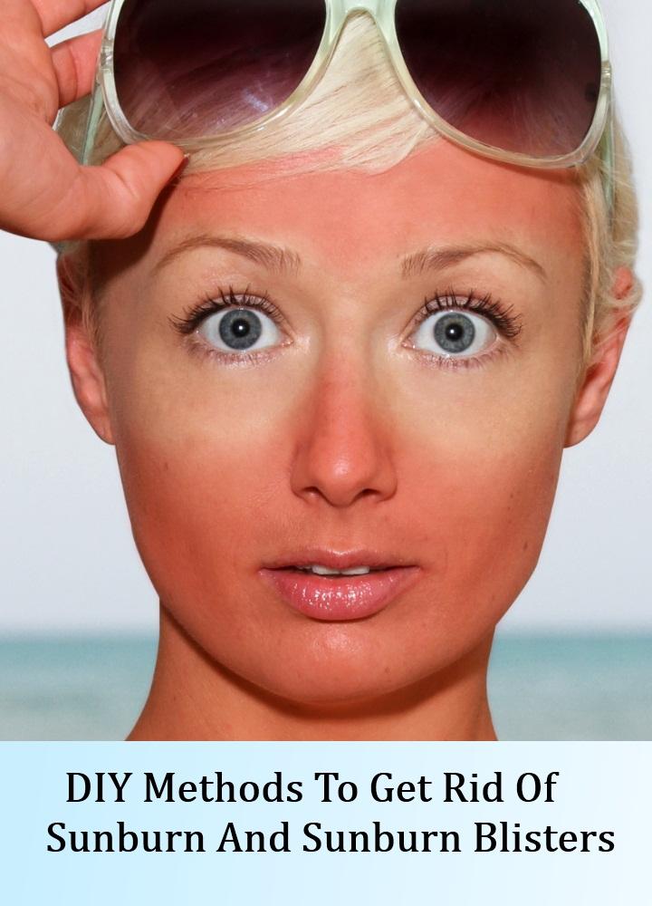 DIY Methods To Get Rid Of Sunburn And Sunburn Blisters