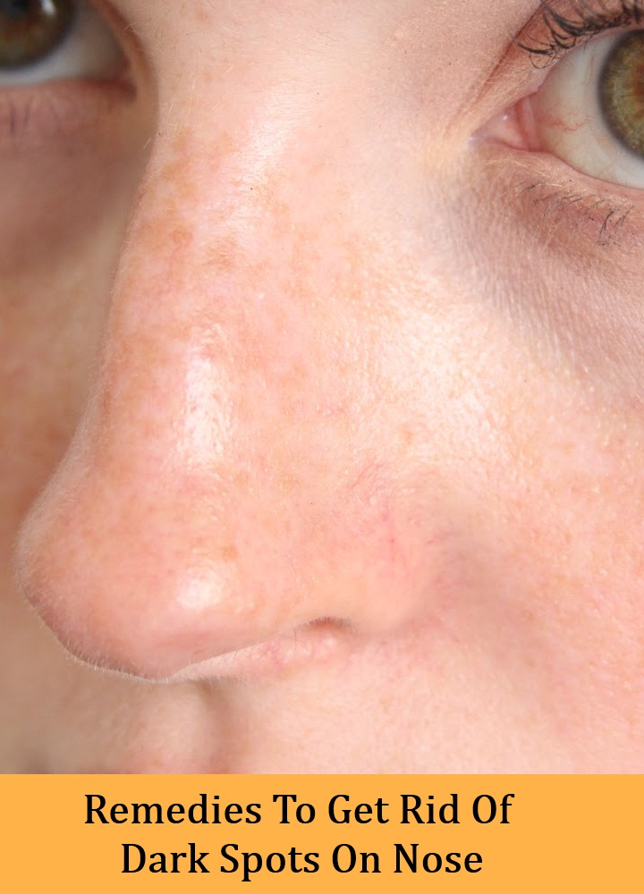Remedies To Get Rid Of Dark Spots On Nose