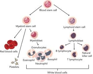 Acute lymphoblastic leukemia facts   Seattle Cancer Care Alliance