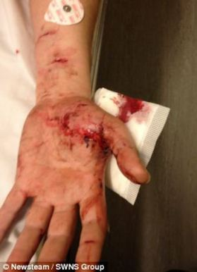 Storm Rescue claim Max mangled Drew Repp's arm and sent this picture to Christine Evans as proof. The picture is actually from an article in a Japanese page from 2013 about a man that saved his daughter from a dog attack.