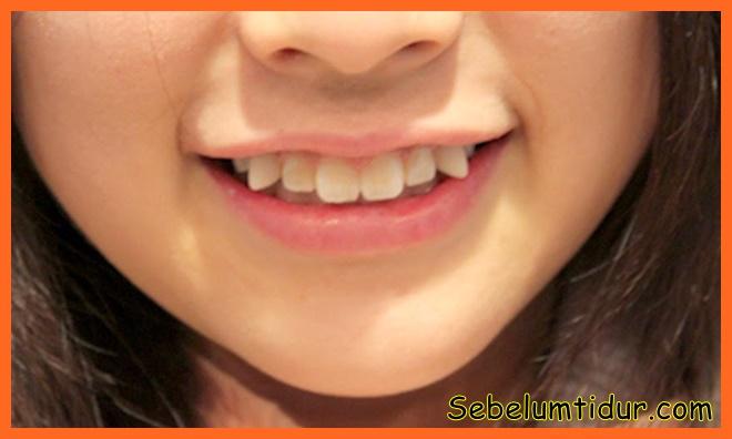 cara merapikan gigi gingsul