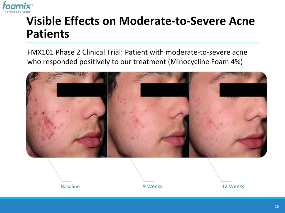 Visible Effects on Moderate-to-Severe Acne Patients ...