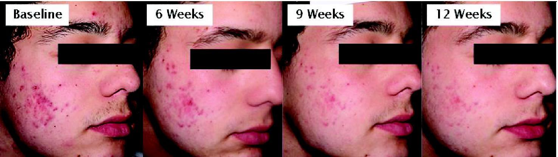 Severe Acne Treatment Prescription