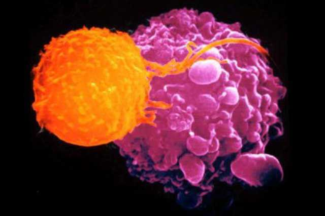 cellula_cancro_linfoma