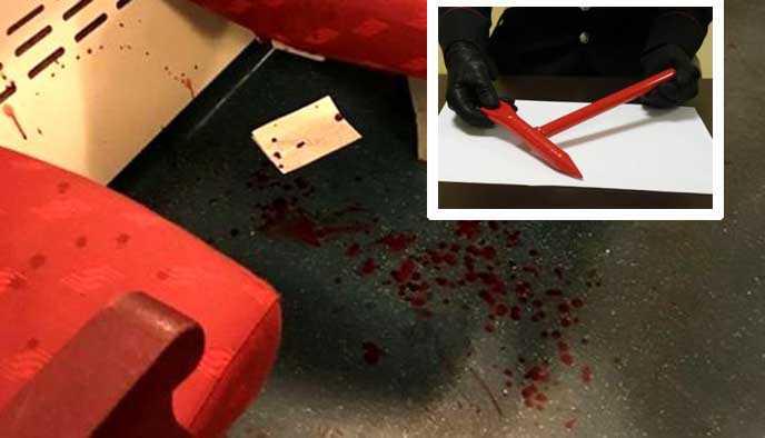 Cassano d'Adda, romeno sfonda il cranio a una ragazza 22enne per 15 euro