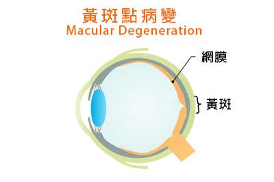 陳凱怡醫生 - 治療黃斑點病變預防是最好方法