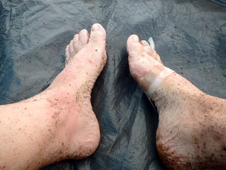 West Coast Trail injuries