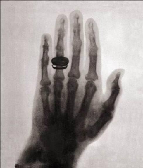 نخستین عکس اشعه ایکس گرفته شده از انسان