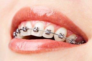 Sabit Ortodontik Tedavi