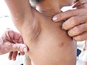 Abduction: In Brasile bambino di 6 anni racconta dei suoi rapimenti