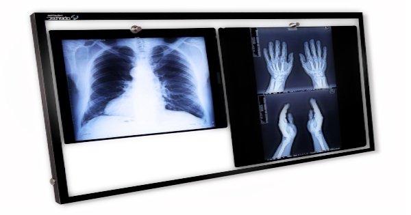 2 tipos de negatoscopios hospitalarios
