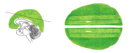 cerebro_verde