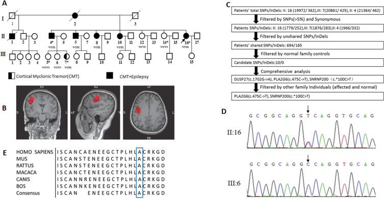 Identification of a novel mutation in PLA2G6 gene in a