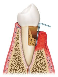 rendering of a tooth with gum disease