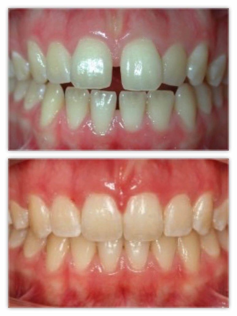 Orthodontie Paris Avant et Aprs  Dr Zarrinpour