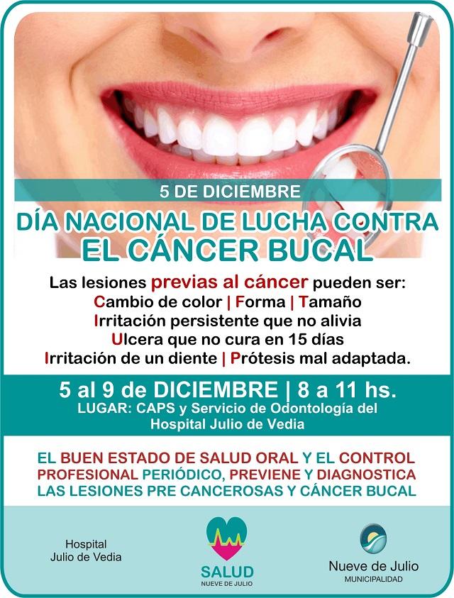 cancer-bucal