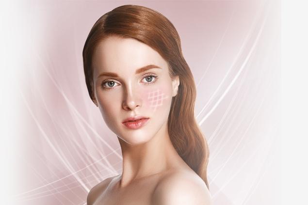 Calmsense trattamento viso anti rossore