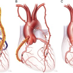 Diagram Of A Heart Bypass Graft Switched Receptacle Wiring Conduits In Coronary Artery Grafting Seminars