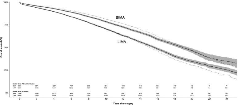 Current Readings: Single vs Bilateral Internal Mammary