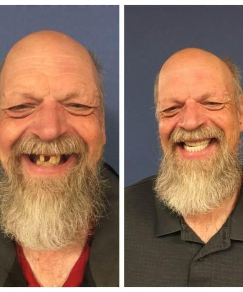 Dental Grants – Colorado Gerontological Society