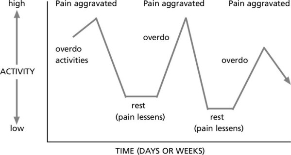 overactivity-underactivity cycle