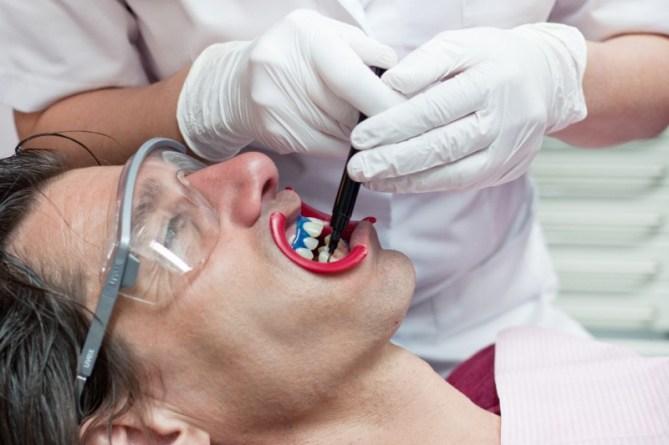 Tanden bleken bij Sense of Smile