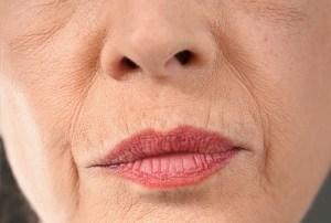 upper lip lines