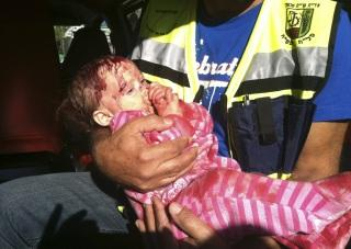 A wounded Israeli baby.  Few publicized this foto because few care about Israeli civilians