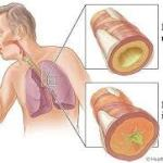 Bronchite: diagnosi, sintomi e terapia